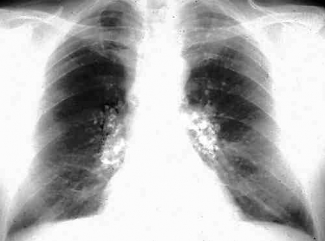 lung disease has reemerged in australia healthtimes