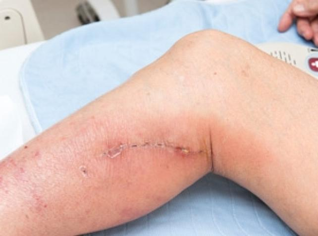 Wounds and the normal healing process - HealthTimes